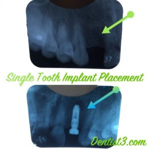 1st-implant-placement-dentist3