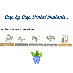 step-by-step-dental-implants