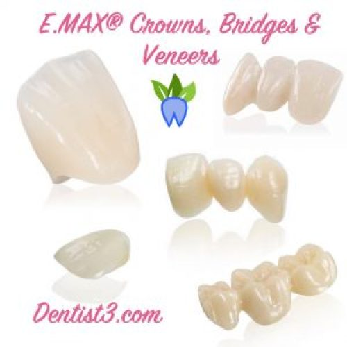 emax-crowns-bridges