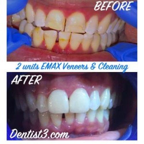 emax-veneers-before-after