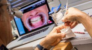 Laboratorio odontotecnico a Brescia