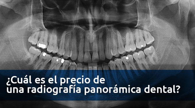 cual-es-el-precio-de-una-radiografia-panoramica-dental
