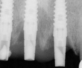implantes de dientes de titanio