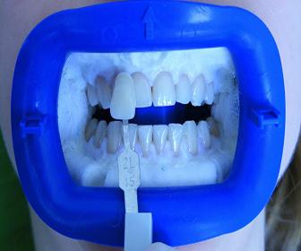 limpieza-dental-con-laser