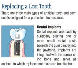 Common Dental Procedures, Replacing a Lost Tooth, Brampton Dentists, To Dentists in Brampton, Dental Facts, Dental Information,