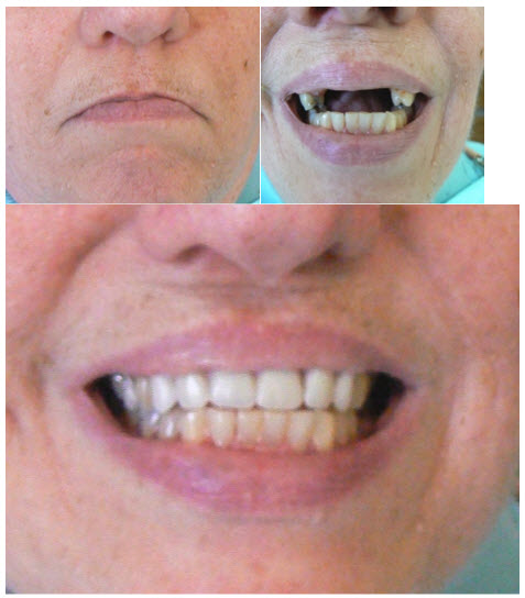 dentures_2