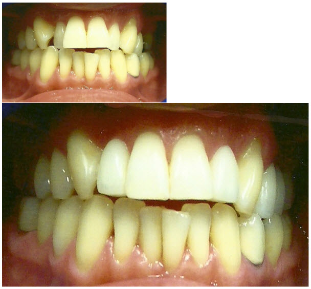 mal_aligned_teeth_veneers_1
