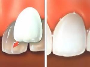 Facettes pelliculaires soins dentaires et esthétiques cabinet paraschiv perpignan