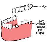 bridge soins dentaires alignement blanchiment carie prothèses inlay onlay pivot cabinet dentaire paraschiv perpignan