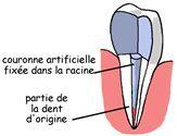 soins dentaires alignement blanchiment carie prothèses inlay onlay pivot cabinet dentaire paraschiv perpignan