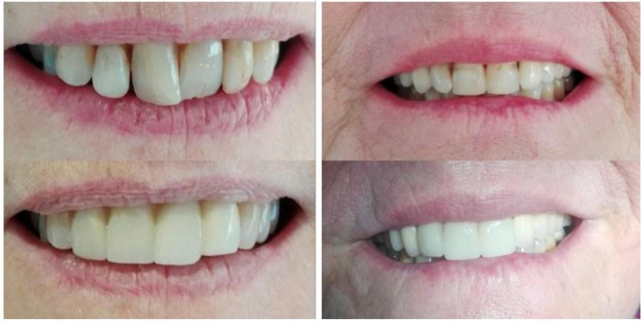 facettes dentaires perpignan
