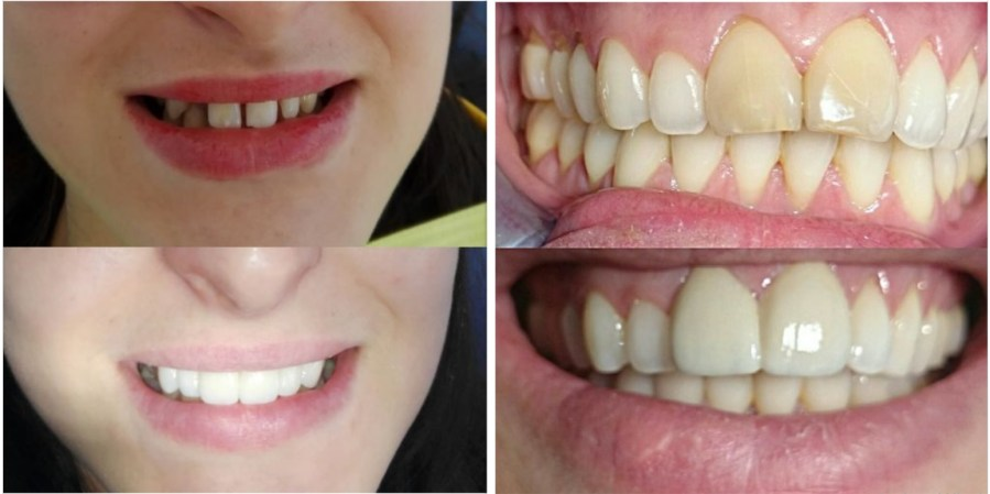 alignement blanchiment carie prothèses inlay onlay pivot cabinet dentaire paraschiv perpignan