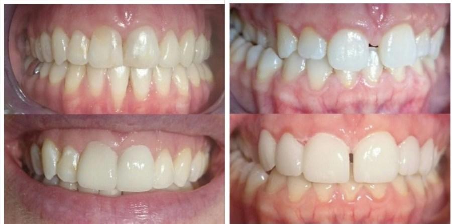 soins dentaires alignement carie prothèses inlay onlay pivot cabinet dentaire paraschiv perpignan
