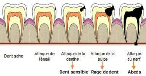 plomb soins dentaires alignement blanchiment carie prothèses inlay onlay pivot cabinet dentaire paraschiv perpignan