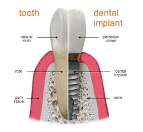 Dental-Implant-500-x-460.jpg?fit=500%2C462&ssl=1