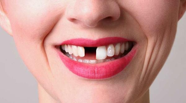 Missing-Teeth-600-x-333.jpg?fit=600%2C333&ssl=1