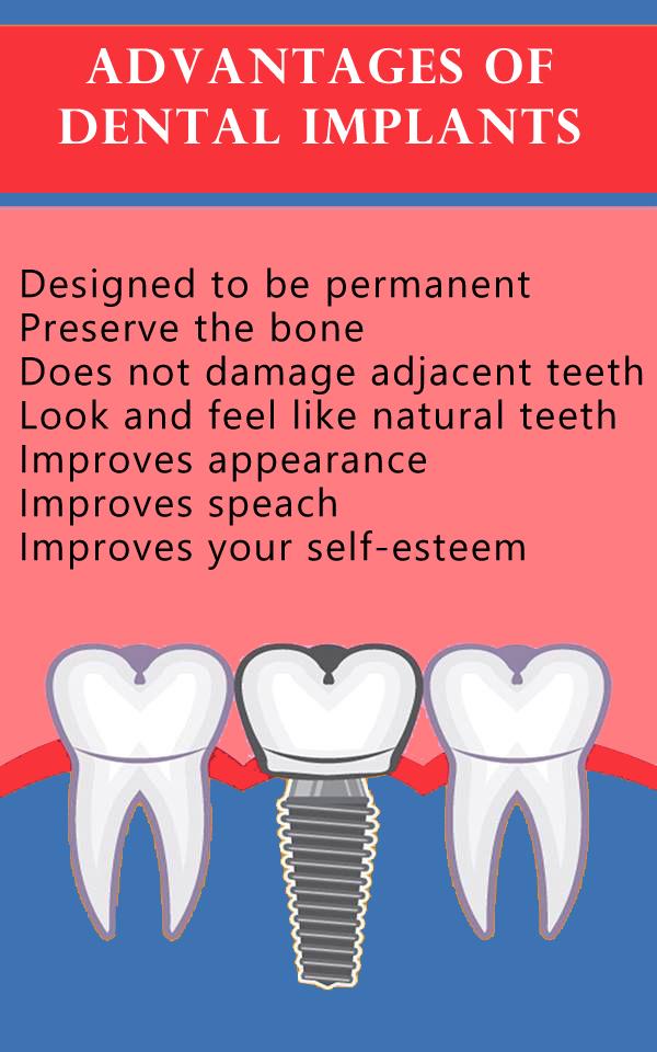 Advantages-of-Dental-Implants-1.jpg?fit=600%2C960&ssl=1