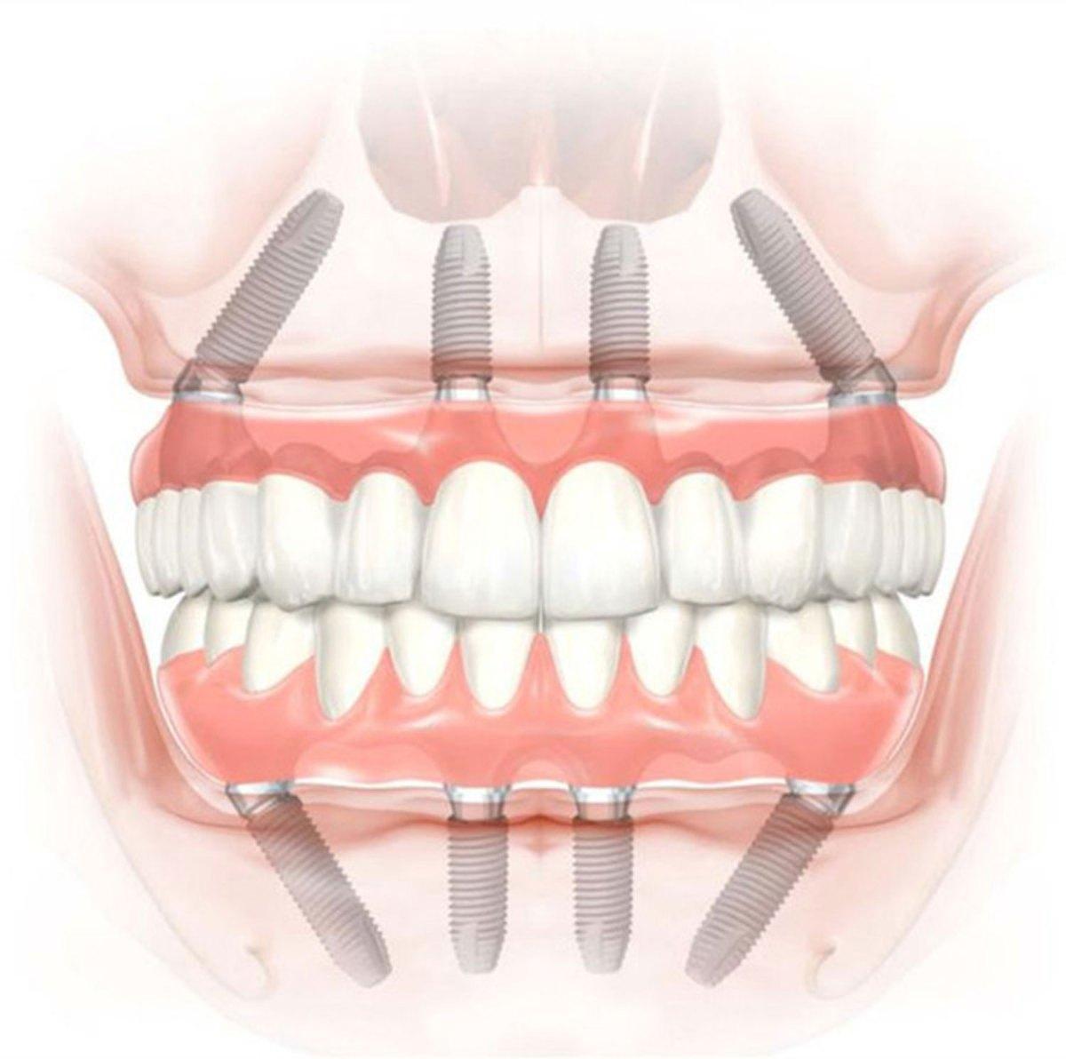 Implants-1500xx-SD-1.jpg?fit=1200%2C1192&ssl=1