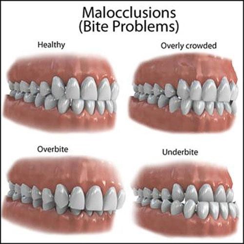 Malocclusion-500xx.jpg?fit=500%2C500&ssl=1