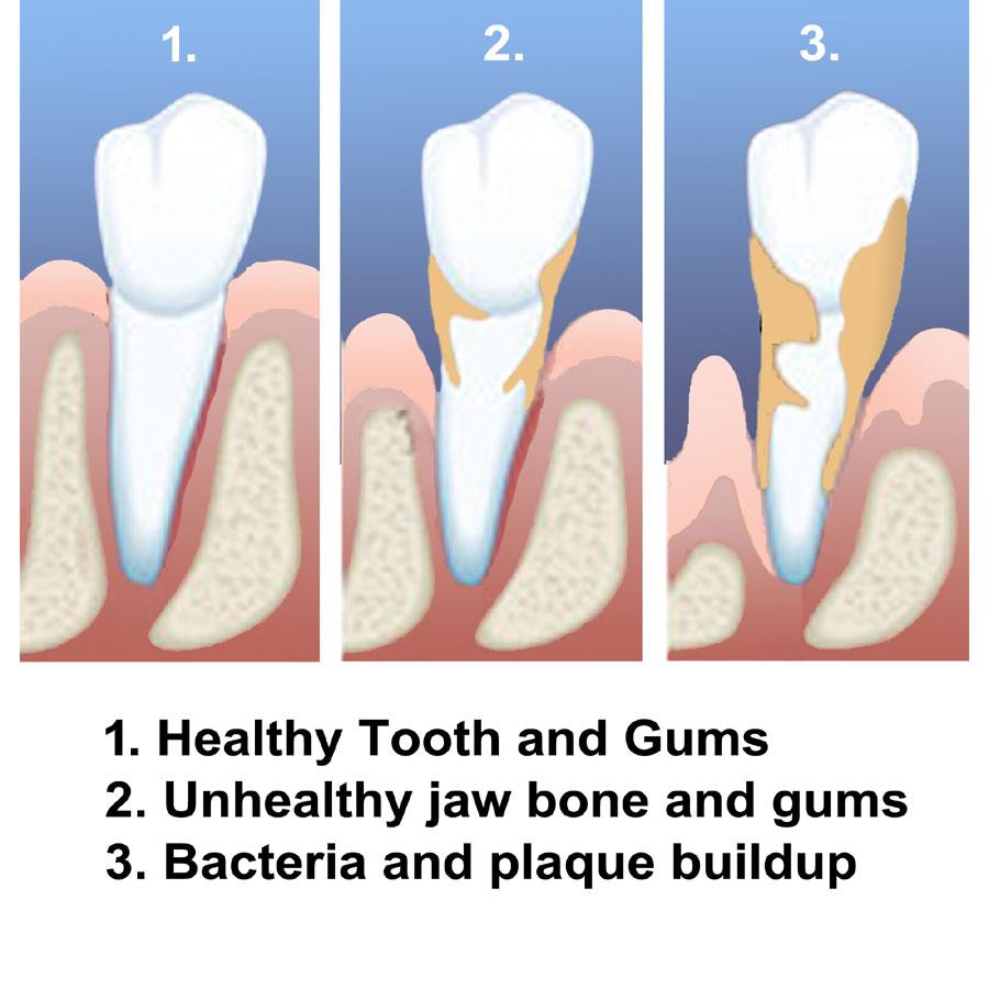 Gum-Disease1-900xx-300.jpg?fit=900%2C900&ssl=1
