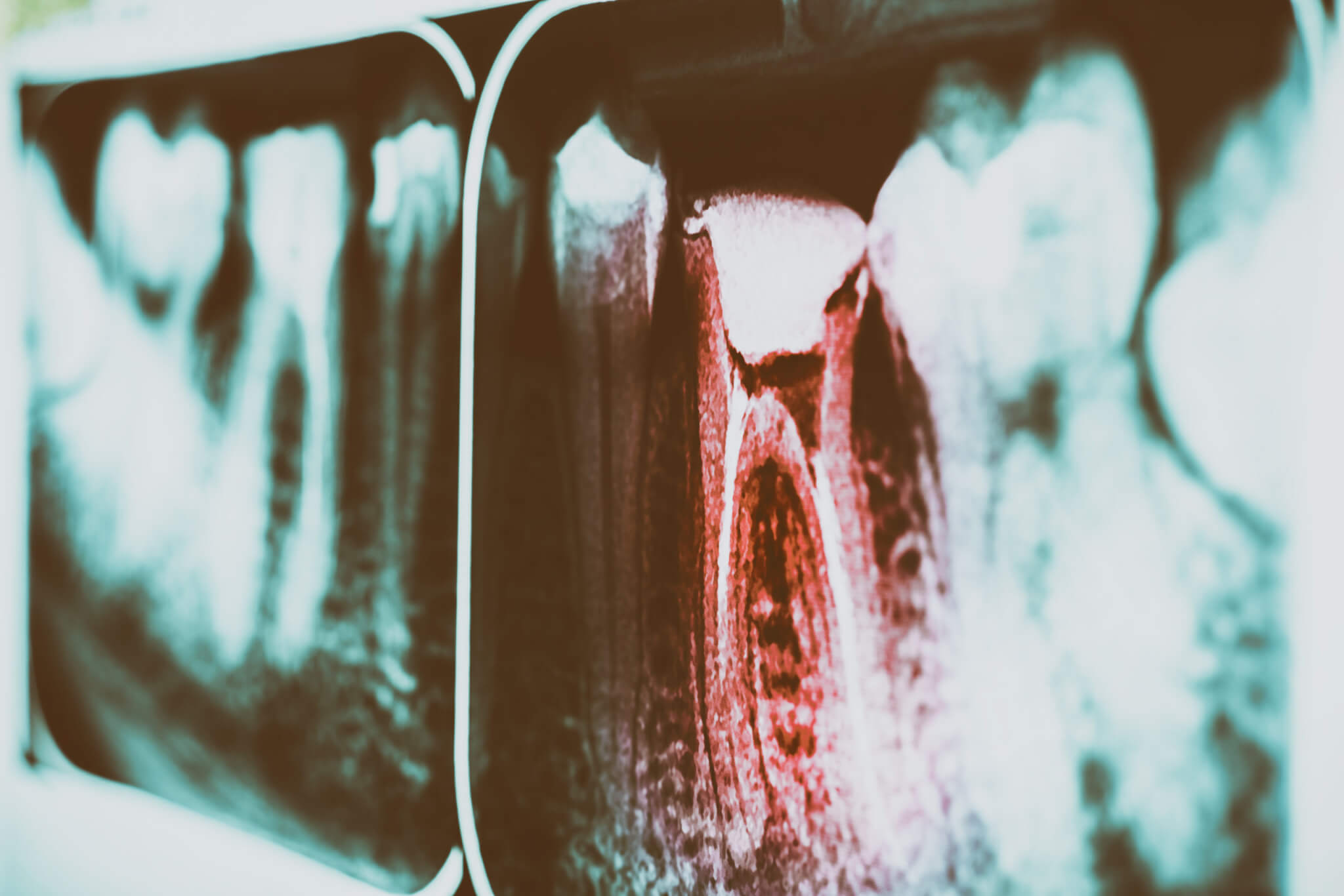 pain-of-tooth-decay-on-teeth-x-ray-TP5AF56