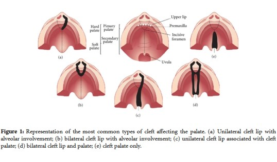 04features-cleft-palate-3