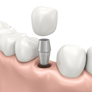 This diagram shows how a dental implant is restored using an abutment and crown.