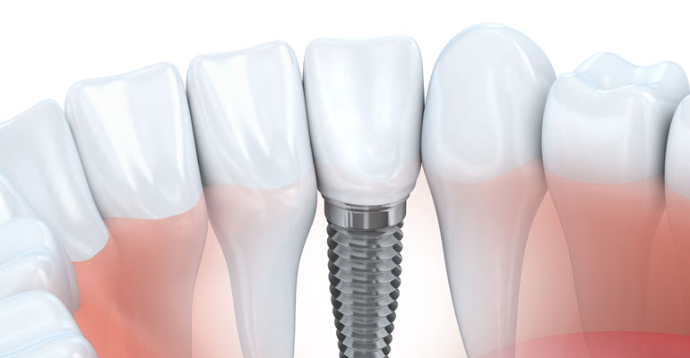 Illustration of a dental implant placed next to natural teeth