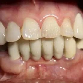Dental work 1