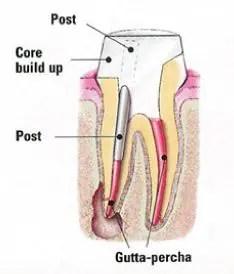 Endodontic treatment graph