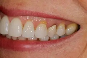 Crowns used in gum recession to cover exposed root
