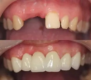Bridge is used to replace several missing teeth