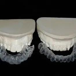 Fulll Dentures