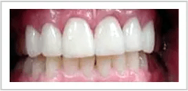 Veneers After Treatment