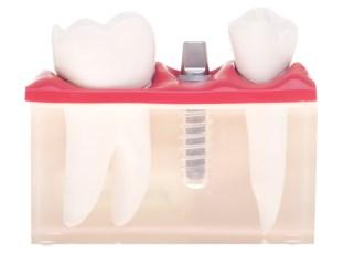 Dental Implant Courses