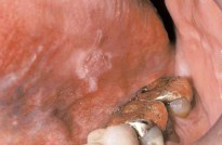 Leukoplakia Lesion