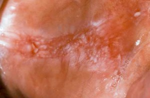 Speckled Leukoplakia