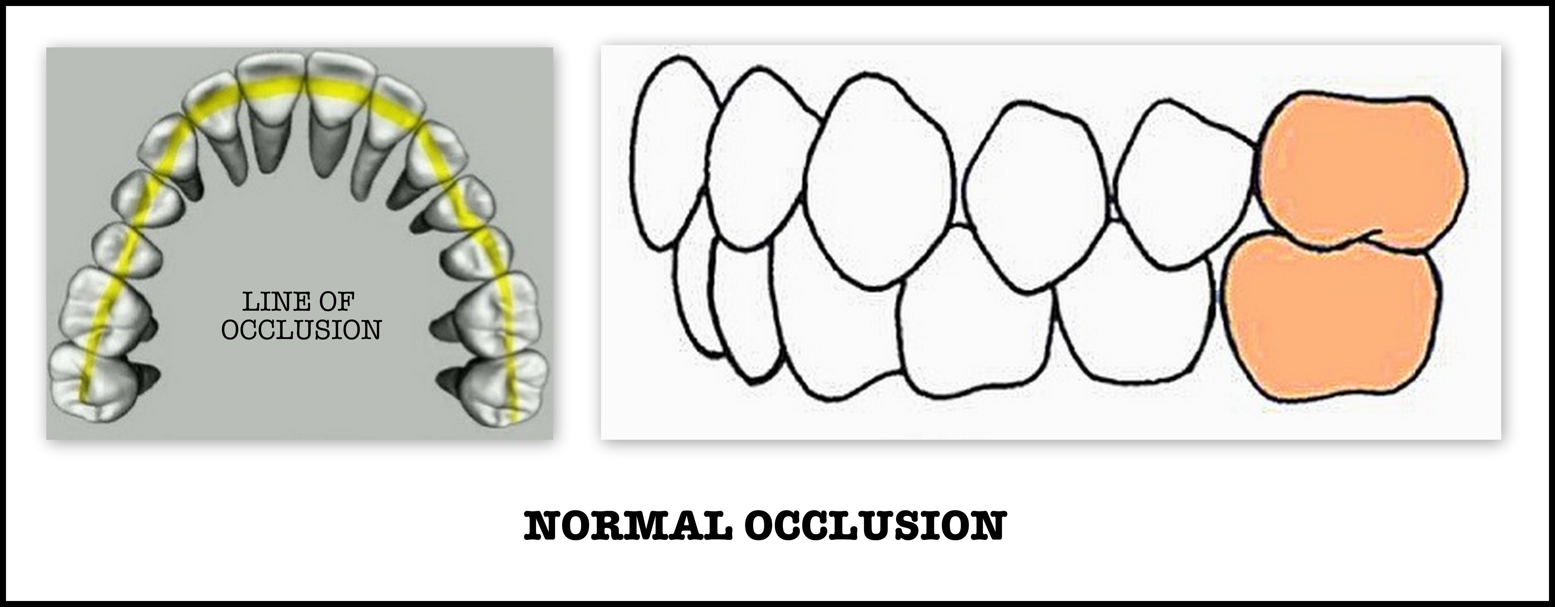 Angle S Classification Of Malocclusion