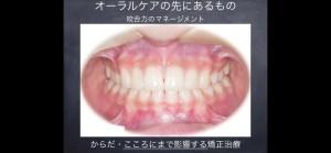 OrthodonticAchievement