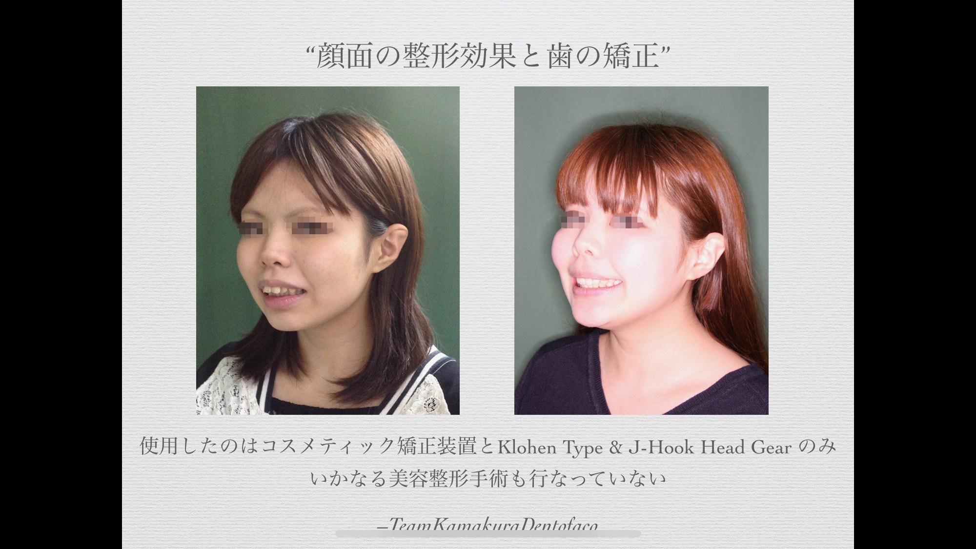 骨格性上顎前突成人女性症例