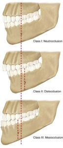 Angle'sClassificationOfMalocclusion