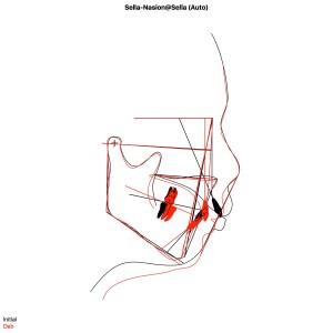 骨格性上顎前突OJ12mm