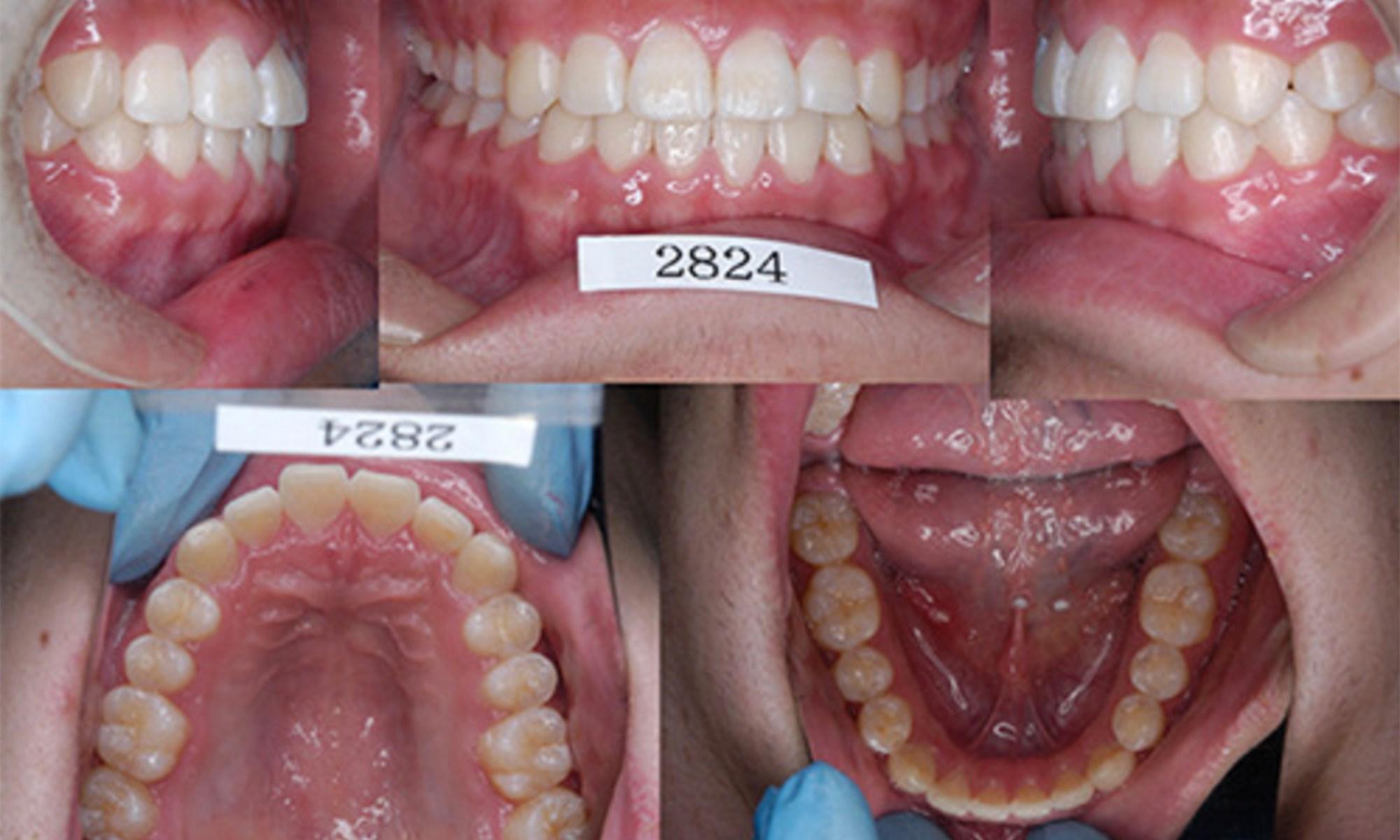 成長期の矯正歯科治療で体格改善