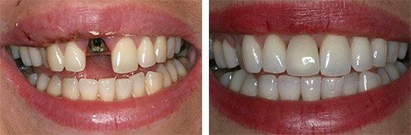 Сколько дней может болеть десна после имплантации зуба Почему у вас периимплантит