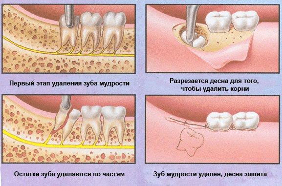 Прорезывание зубов мудрости особенности процесса и облегчение симптомов