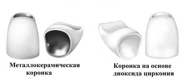 Kronenrahmen - Metallkeramik und Dioxid