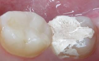 Поставили временную пломбу зуб очень болит. Болит или ноет зуб с временной пломбой. Болит зуб под пломбой: дополнительные причины