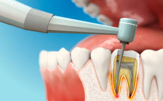Болит зуб после чистки каналов при надавливании и нажатии ...