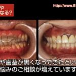 高松市の金属アレルギー対応の歯科|歯茎が黒くなってきた原因は金属です。