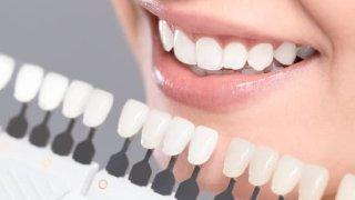 セラミック治療なら香川県の吉本歯科医院